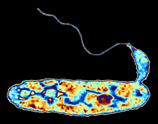 <em></em>It's a bacteria-eat-bacteria world, scientists say. <em>Bdellovibrio bacteriovorus, <strong></strong></em>shown here in false color, attacks common germs six times its size, then devours them from the inside out.
