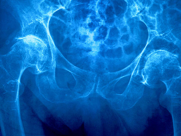 Osteoporosis specialists are considering wider use of a drug to strengthen bones in elderly women.