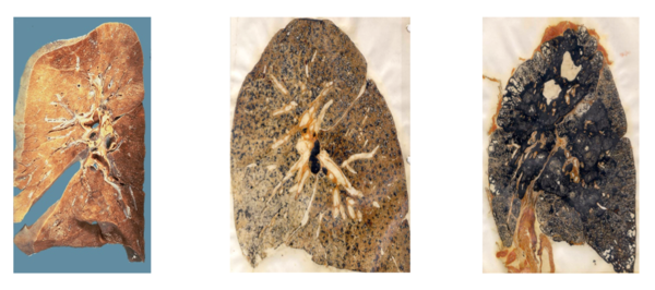 Sliced sections of lungs show the damage and disease caused by excessive exposure to coal and silica dust. The middle slide depicts a lung with fibrotic tissue resulting from simple coal workers' pneumoconiosis or black lung. The slide on the right shows hardened and blackened lung tissue when black lung disease reaches its most advanced stage.