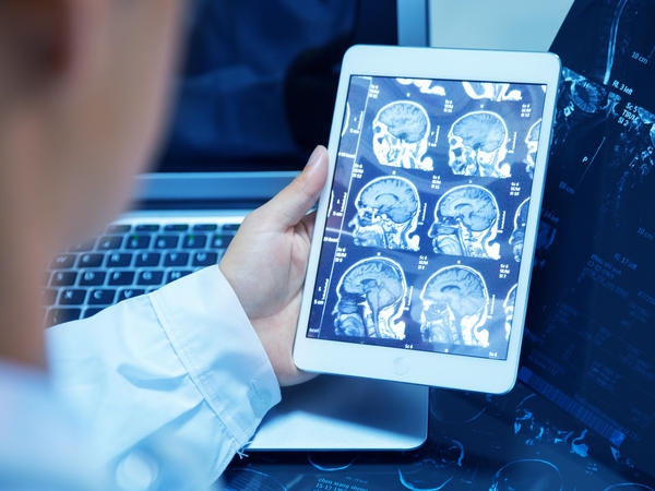 These days, a radiologist at UCSF will go through anywhere from 20 to 100 scans a day, and each scan can have thousands of images to review.