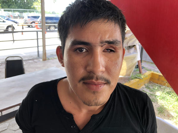 Wayner Berduo's eye socket was mangled by a bullet. His father says a drug lord sent two assassins to kill his sons one day last December in Guatemala.
