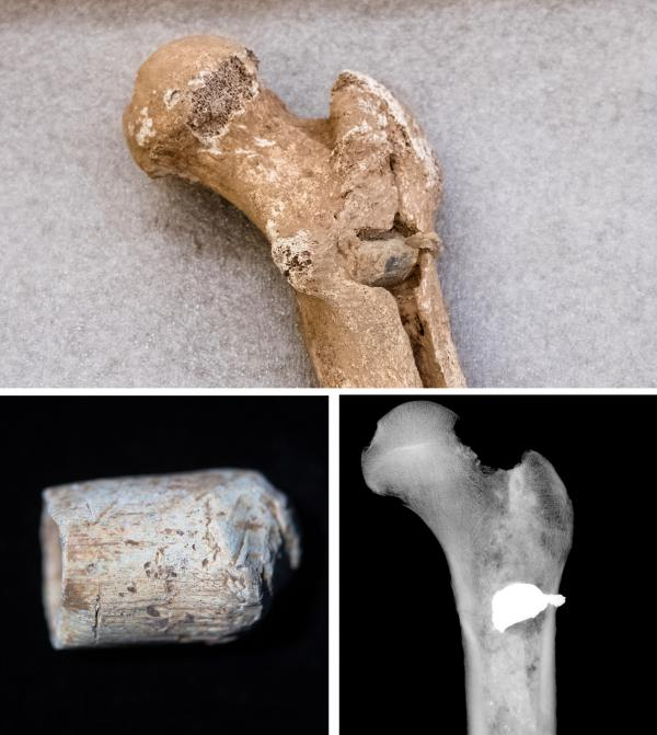 (Top) A bullet lodged in the femur of one of the skeletons. (Lower left) An Enfield bullet from that time period, shows the shape and size of the kind of bullet that killed the soldier. (Lower right) An X-ray shows the position of the embedded bullet in the femur.
