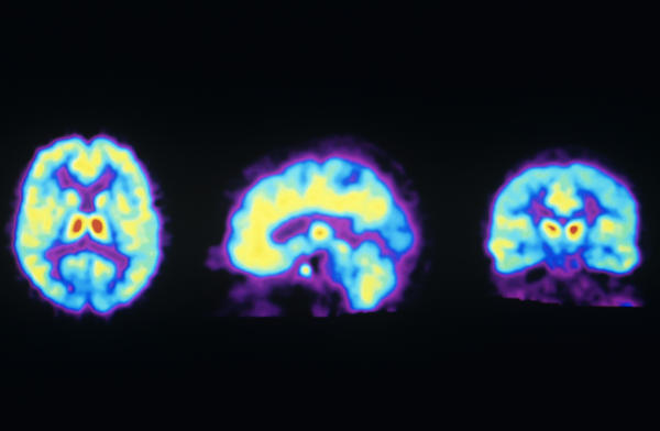 These PET scans show the normal distribution of opioid receptors in the human brain. A new study suggests ketamine may activate these receptors, raising concern it could be addictive.