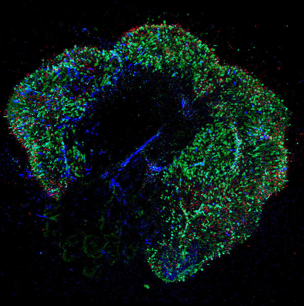 A 291-day-old retina. Our ability to see colors develops in the womb. Now scientists have replicated that process, which could help accelerate efforts to cure colorblindness and lead to new treatments for diseases.