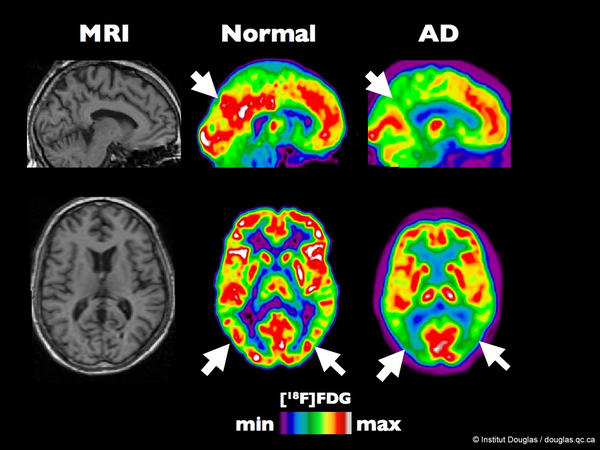 PET scan of a healthy brain compared to a brain at an early stage of Alzheimer's disease.