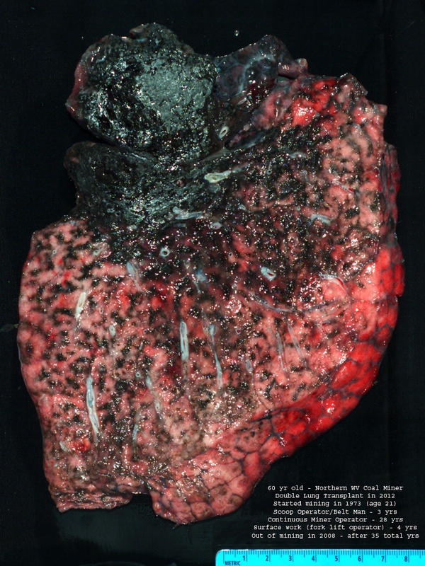 The lung of deceased West Virginia coal miner Chester Fike was taken out during a double lung transplant when he was 60. He worked in the mines for 35 years.