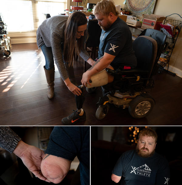 Caretaker Ashlee Williams helps her husband, Former Staff Sgt. J.D. Williams, put on one of his prosthetic legs.