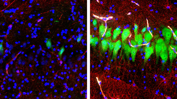 The image on the left shows the brains of pigs that were untreated for 10 hours after death, with neurons appearing as green, astrocytes as red and cell nuclei as blue. The image on the right shows cells in the same area of brains that, four hours after death, were hooked up to a system that the Yale University researchers call Brain<em>Ex</em>.