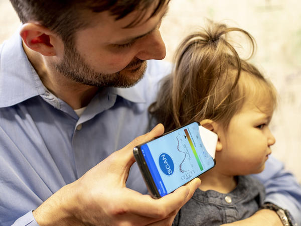 Dr. Randall Bly, an assistant professor of otolaryngology-head and neck surgery at the University of Washington School of Medicine who practices at Seattle Children's Hospital, uses the experimental smartphone app and a paper funnel to check his daughter's ear.