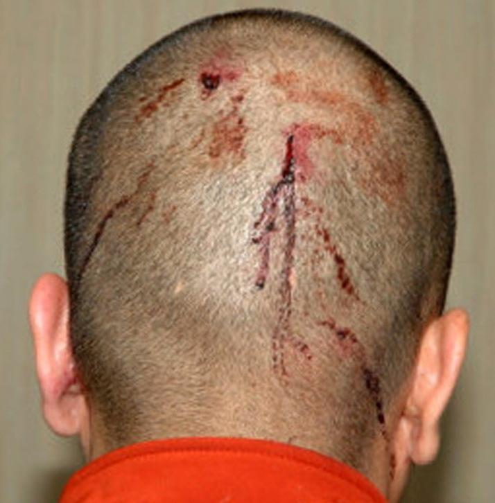ушиб головы и головокружение