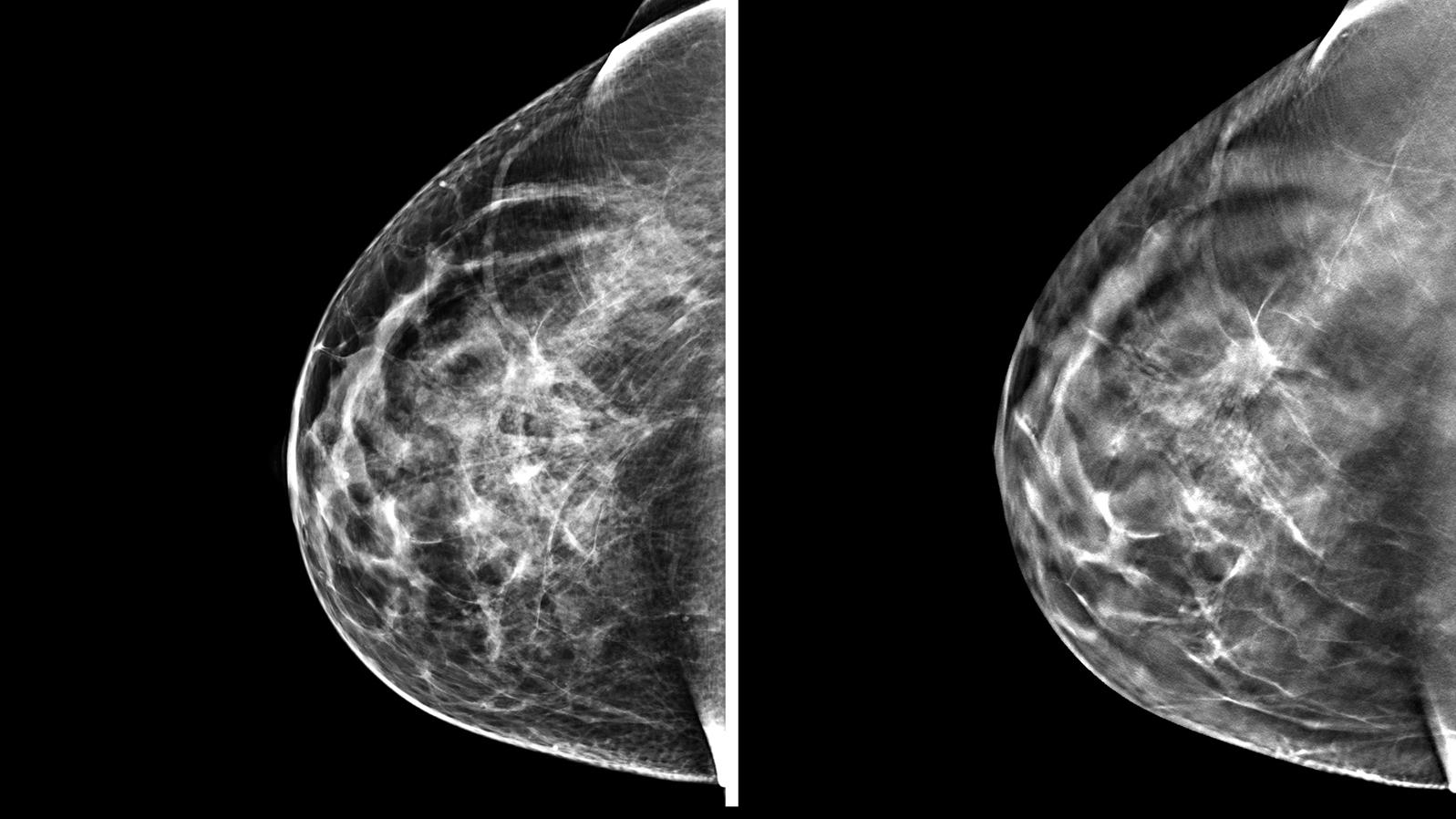 tomosynthesis mammography 3d mammography detects more cancers with fewer recalls tomosynthesis is available at women's center for radiology.