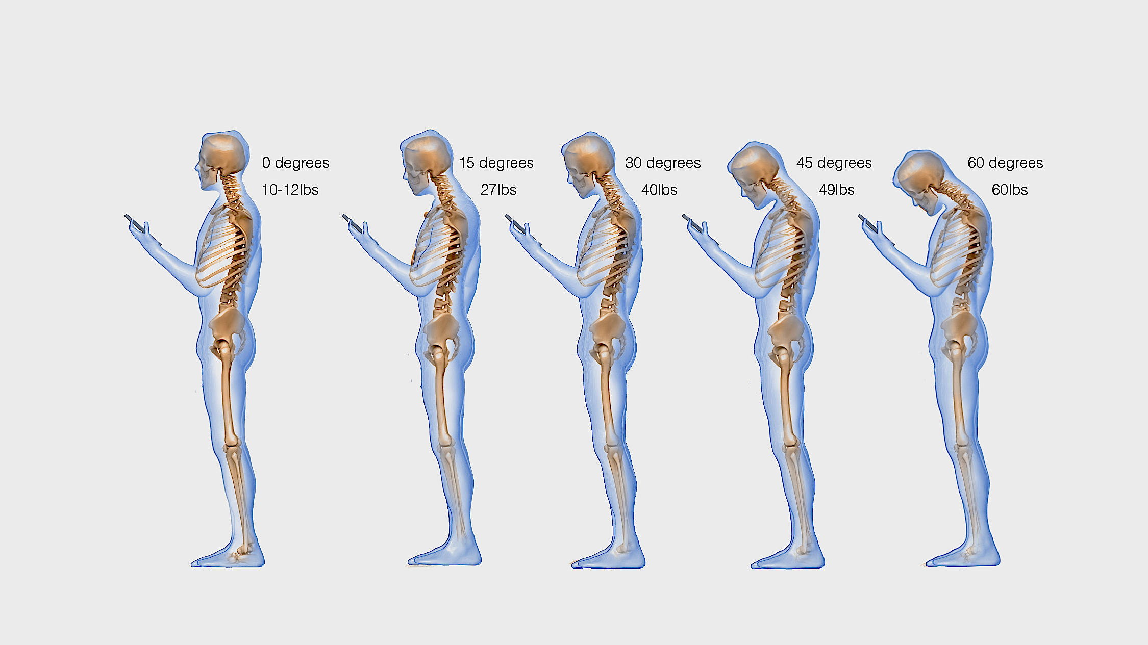 Keep Your Head Up Text Neck Takes A Toll On The Spine Side Effects