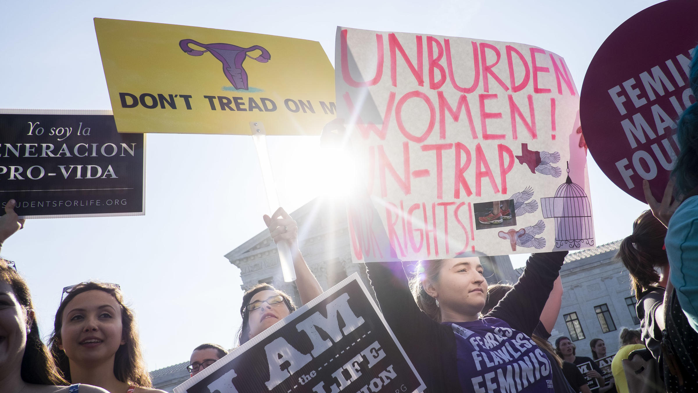 abortion and the supreme court After weeks of delay, the supreme court is expected to make a decision soon on an unusual request from the trump administration in a politically charged abortion case.