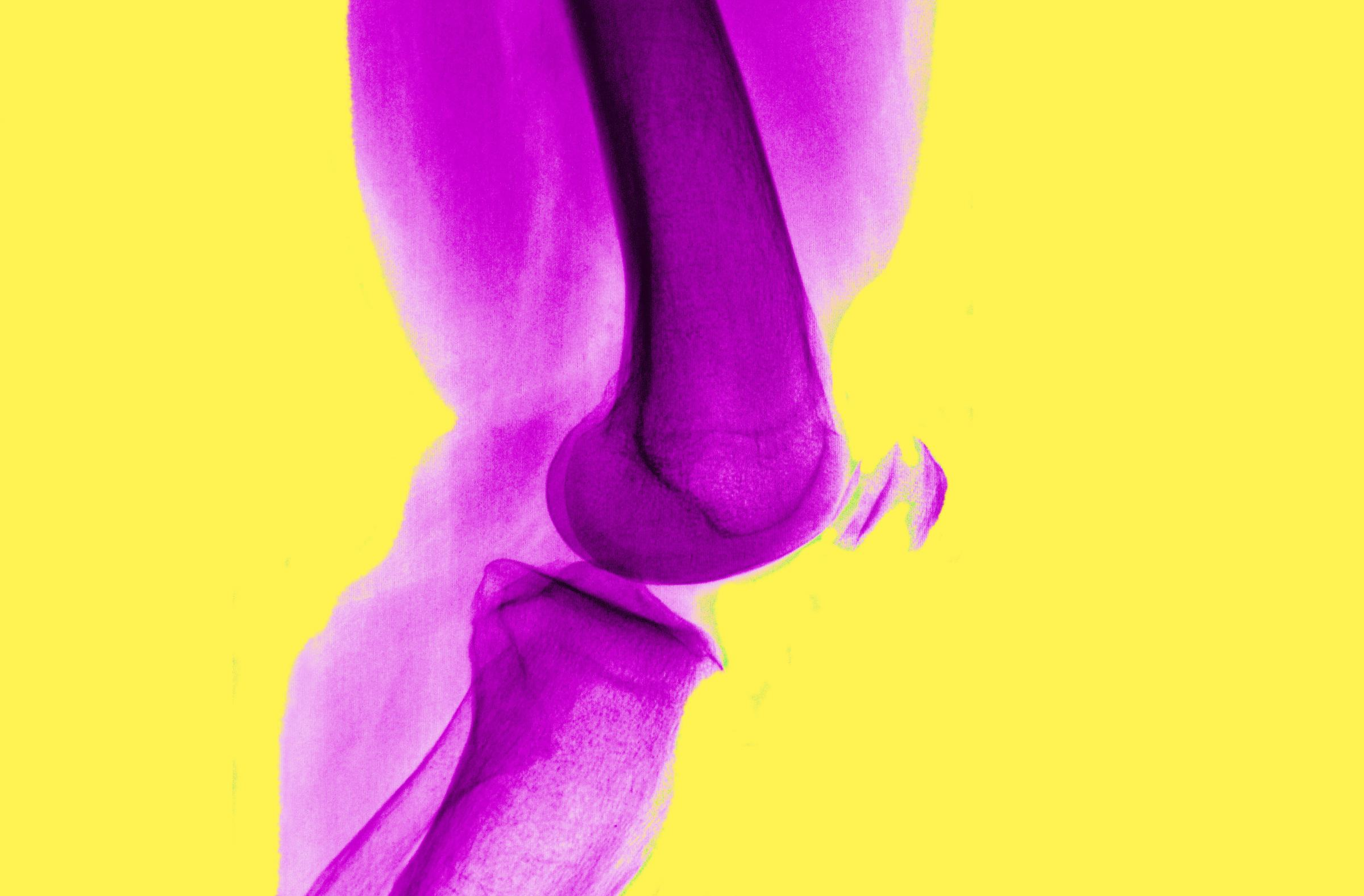 Experts say no to surgery for arthritic knees
