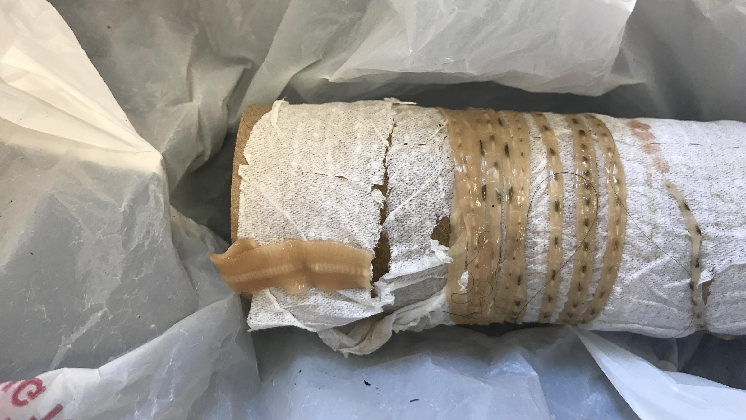 Man feels five-foot tapeworm 'wiggling out' after eating sushi