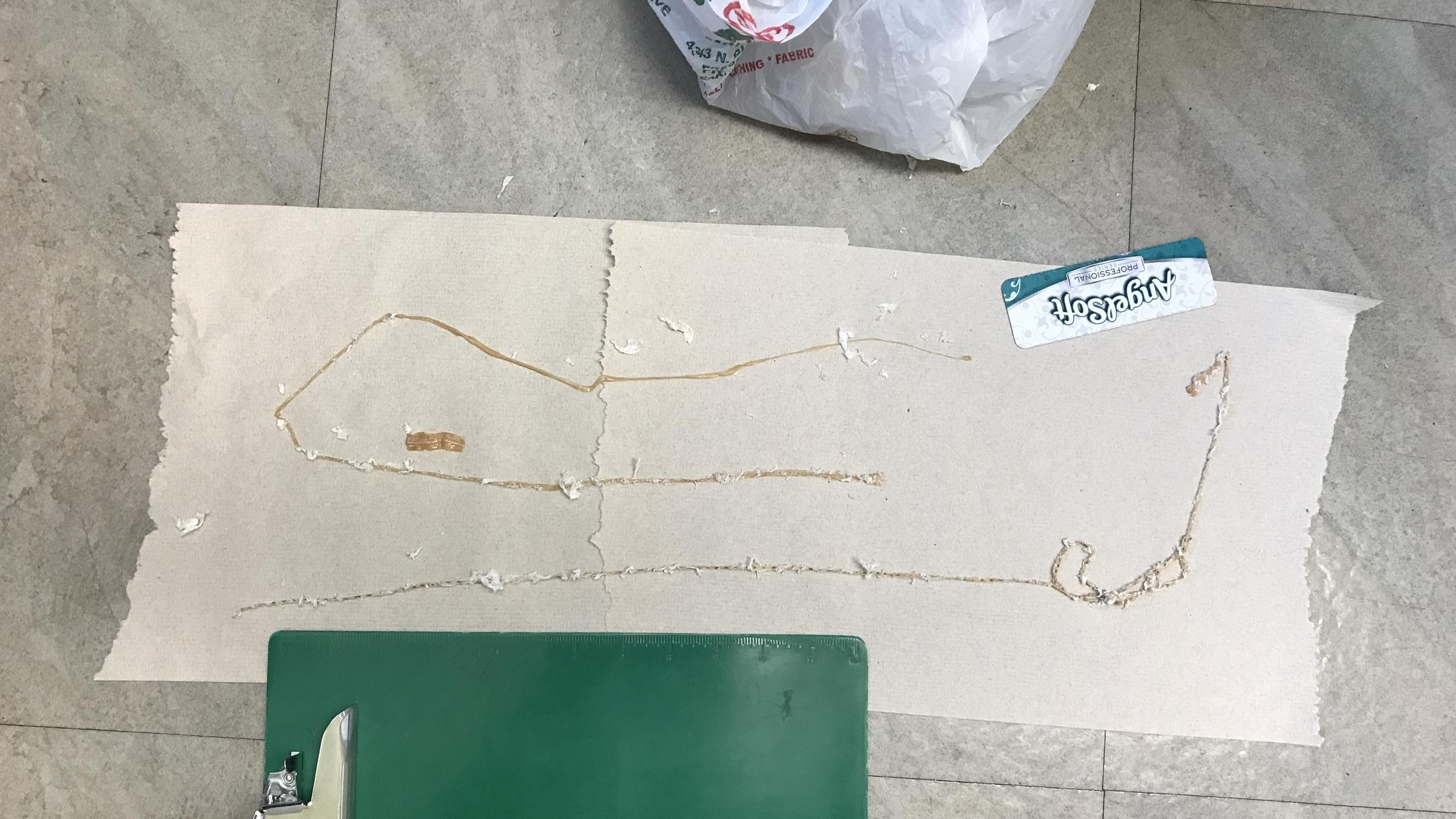 Tapeworm laid out on paper at the hospital