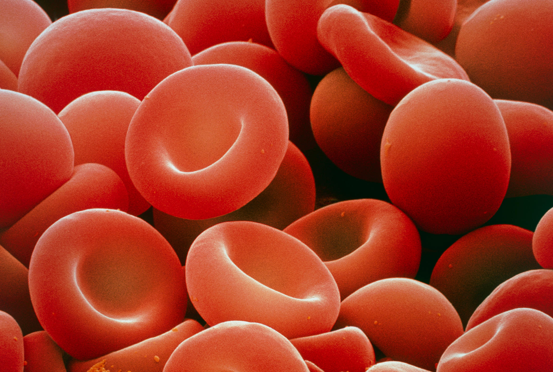 Gene therapy helps patients avoid blood transfusion