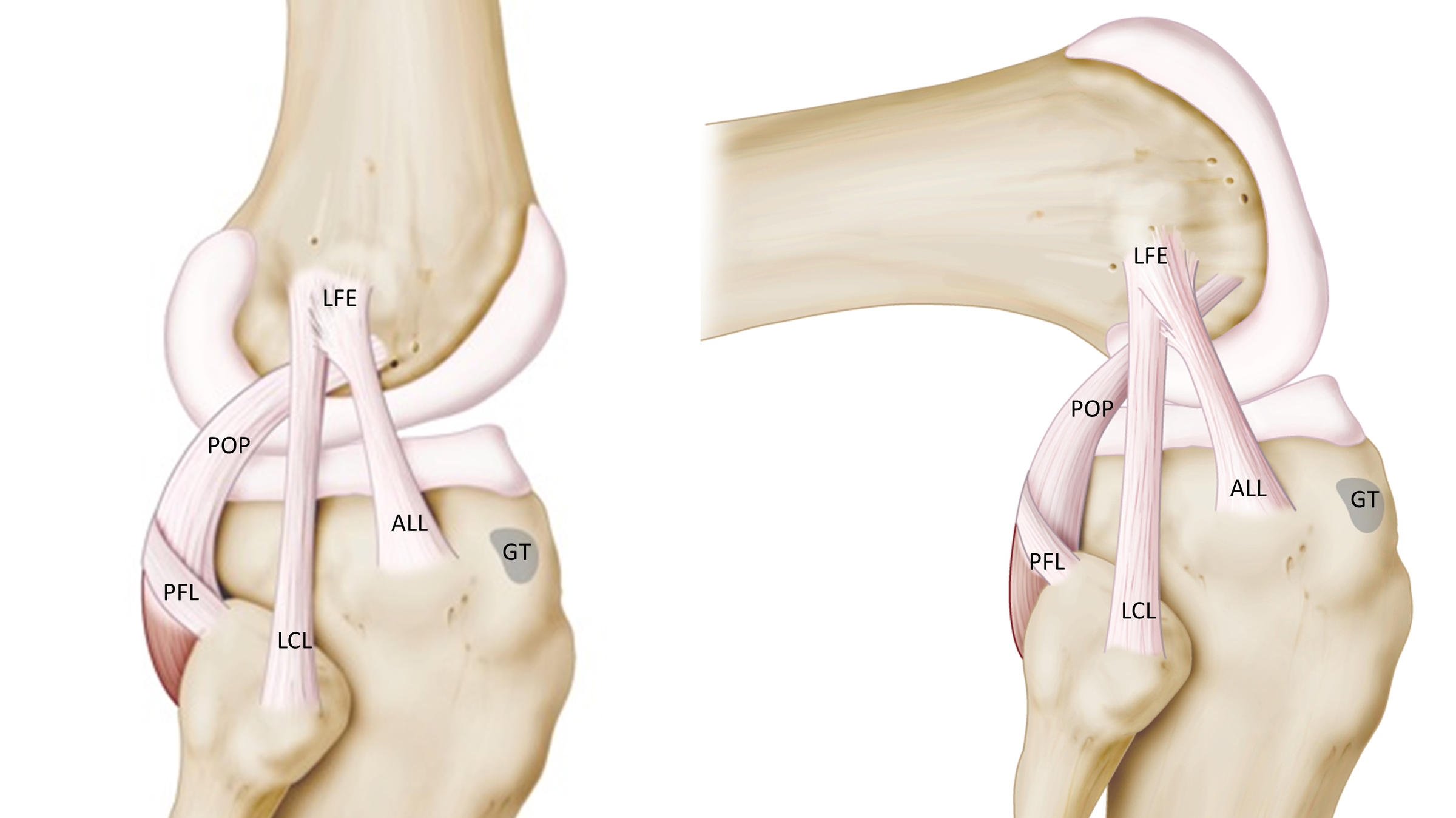 Anterolateral Ligament Knee Anatomy Diagram - Search For Wiring ...