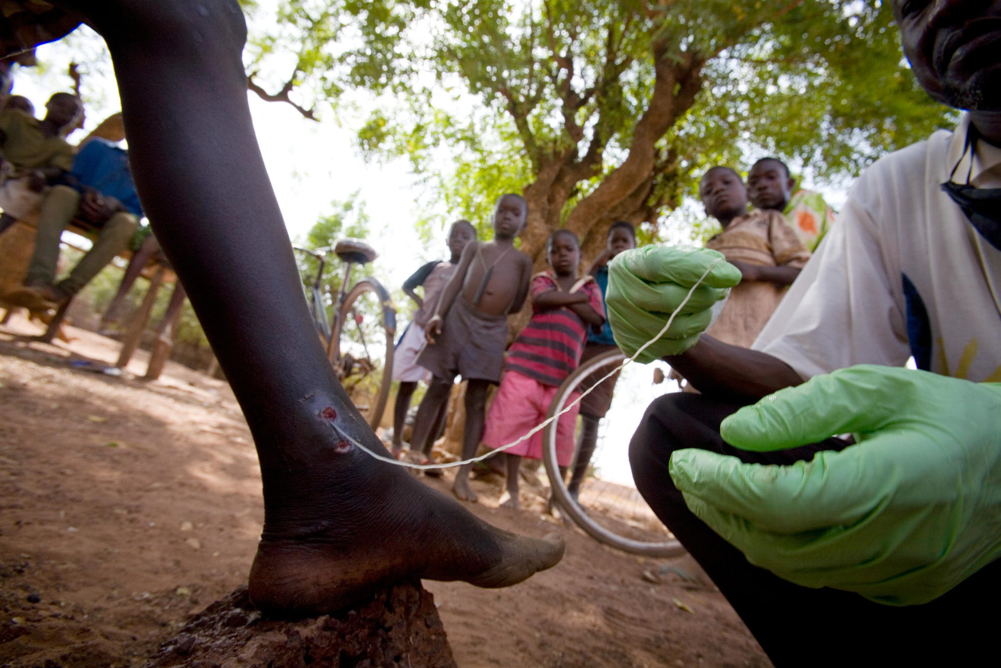 Guinea Worm Infections Drops Low - Jimmy Carter Centre