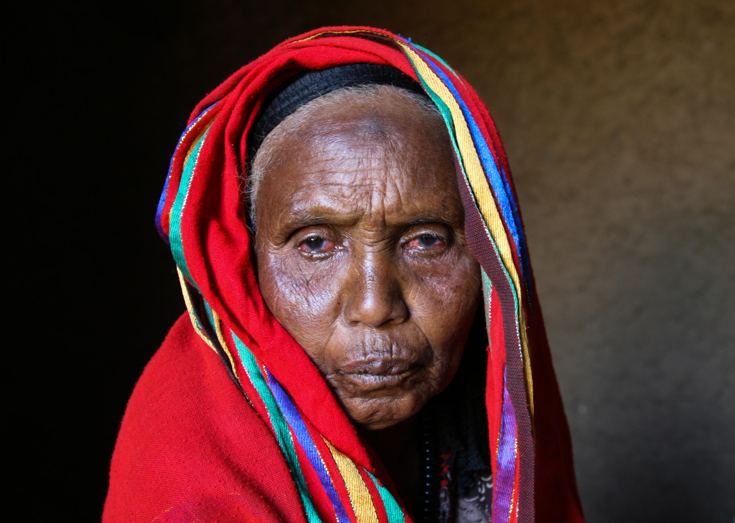 science can blindness goes blinds in has cause woman her cataracts surgery for from removed cataract enlarge contact gettyimages lenses eye