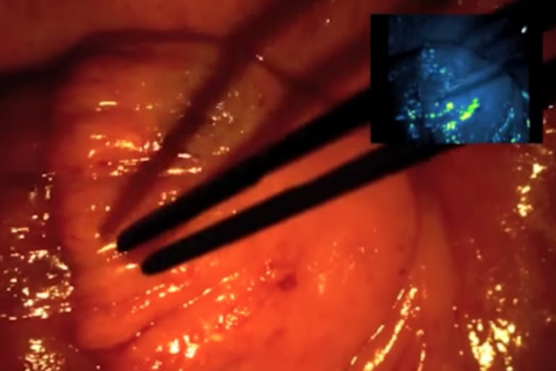 In the right hand corner, under fluorescent lamp, the cancerous tissue glows. (On Target Laboratories/YouTube)