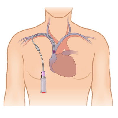 catheter and heart drawing