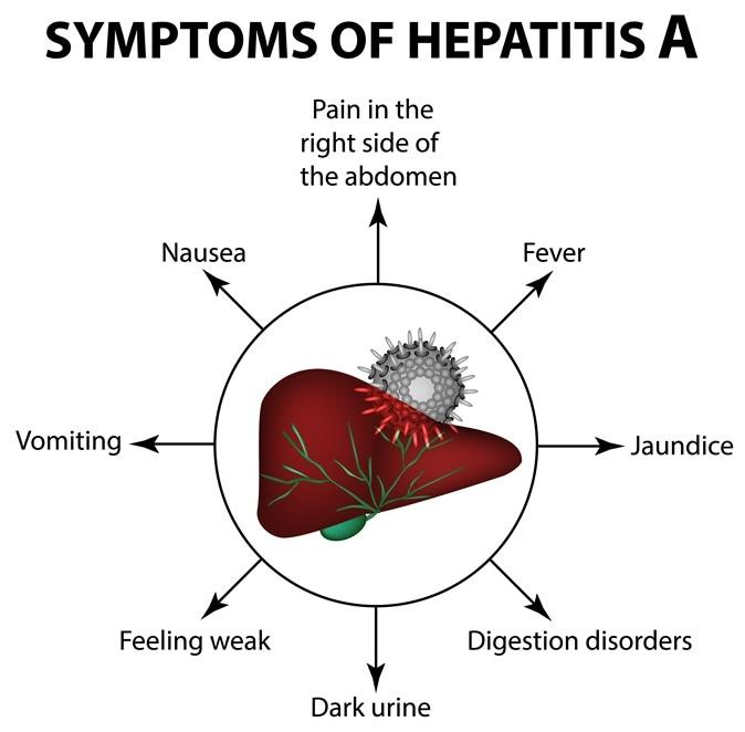 Symptoms of Hepatitis A