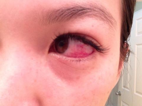 False Eyelashes Could Damage Your Eyes | UPR Utah Public Radio