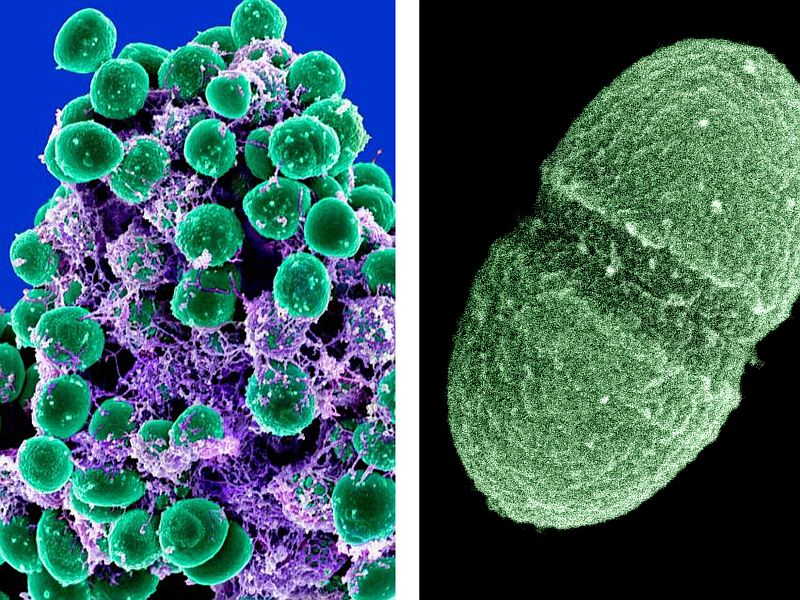 Our Body, Our Germs: The Role Of The Microbes Among Us