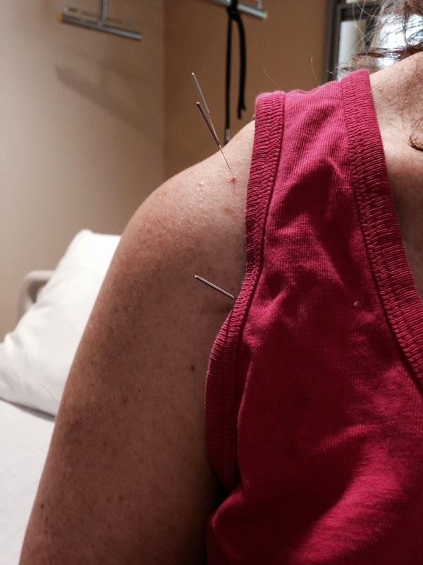 Acupuncture needles relieve pain without medication for veteran Carol Hitchcock at the VA Hospital in White River Junction.