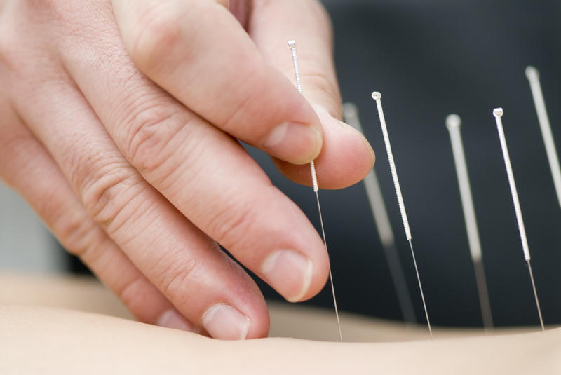 A new study will seek to determine whether access to acupuncture as a pain management tool for chronic pain could help prevent patients from becoming addicted to opioids.