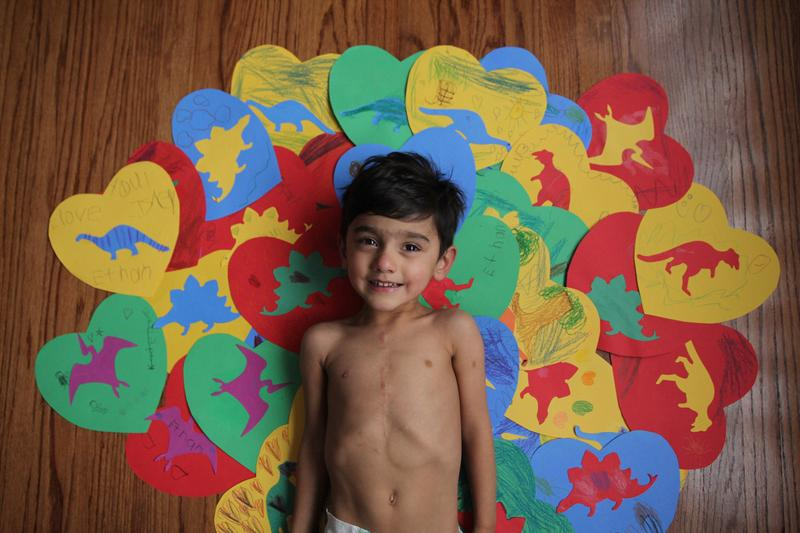 Ethan Chandra has a condition called heterotaxy, and has gone through five heart surgeries before age 4.