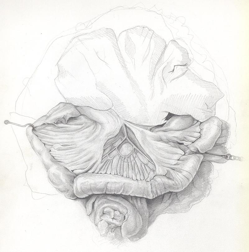 Even a medical illustration in progress of surgery looks elegant in the artist's hands.