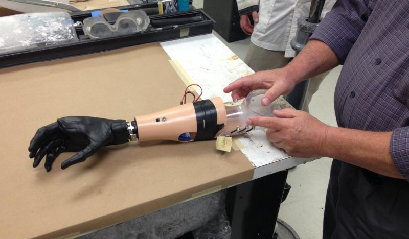 Mike Hall of Rehab Tech points out contacts in artifical hand that sense muscle and nerve impulses to allow an amputee to control numerous gripping fucntions of fingers in prosthetic.