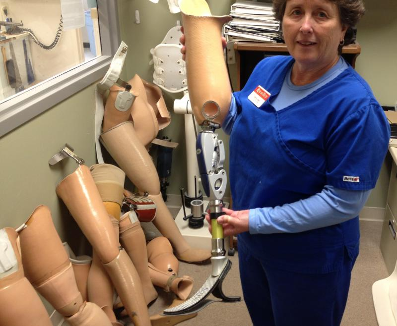 Terry Hall of Rehab Tech holds advanced knee and foot prosthetic