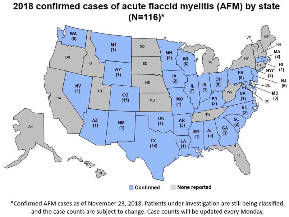 Mysterious Paralyzing Disease AFM Reported In New York City, 30 States