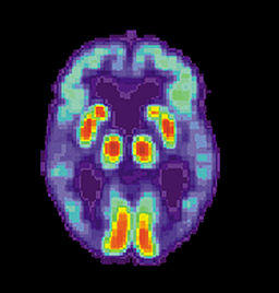 Alzheimer's PET scan