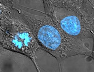 HeLa cells