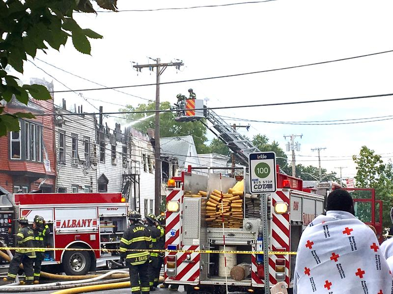 Many residents were displaced, the Times Union reports one civilian was injured in the Quail Street fire.