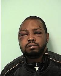 Melvin Jones III was left permanently disfigured by the assault by Jeffrey Asher