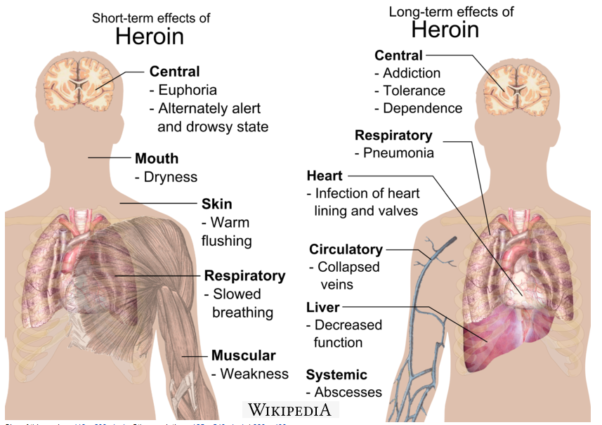 heroin abuse and its effects on Heroin exerts its effects by binding with receptor cells in the brain that respond to opiates heroin abuse and depression are both risk factors for suicide.