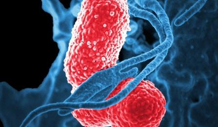 Klebsiella pneumoniae, the pink-colored bacteria in the image, cause more than 2 million infections and nearly 23,000 deaths a year.