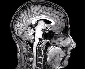 Functional MRI can reveal patterns of brain activity in patients who cannot otherwise communicate.