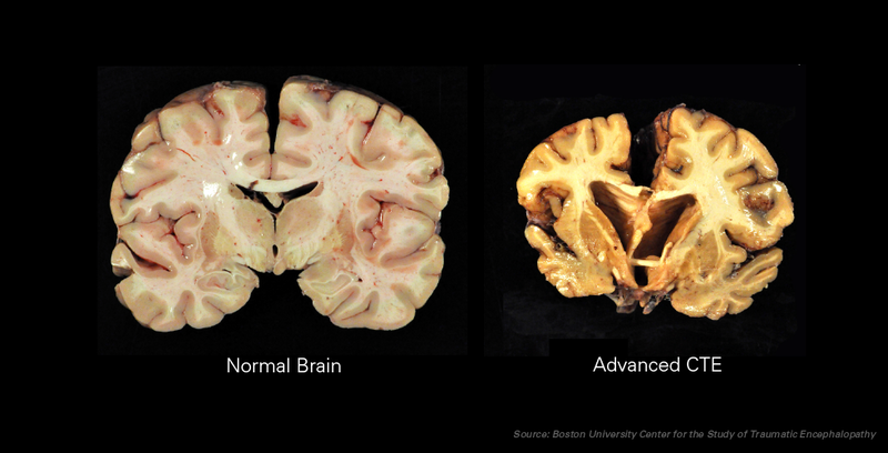 A healthy brain on the left. On the right, a brain with CTE.