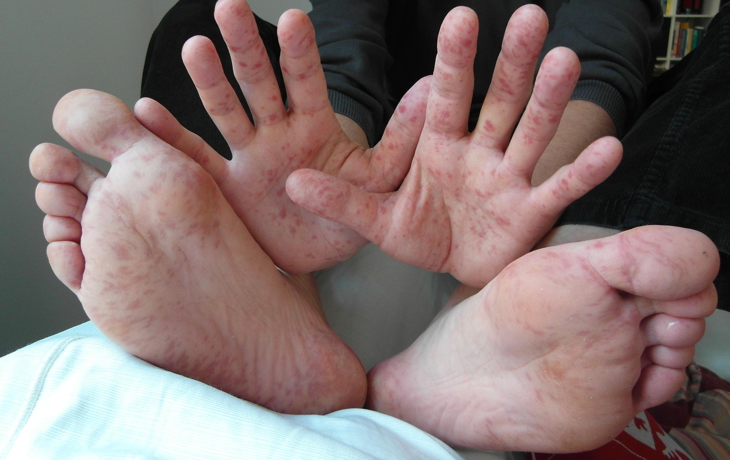 Chicken Pox vs. Hand, Foot Mouth Disease