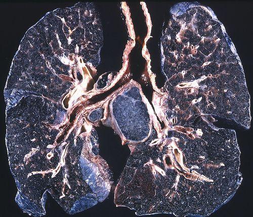 Big Black Lungs