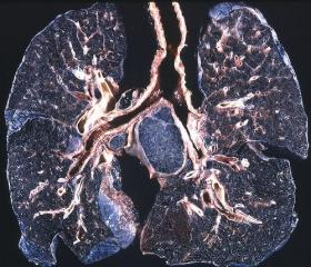 The black pigmentation and fibrosis are due to inhalation of carbon pigment and silica respectively in a coal worker.