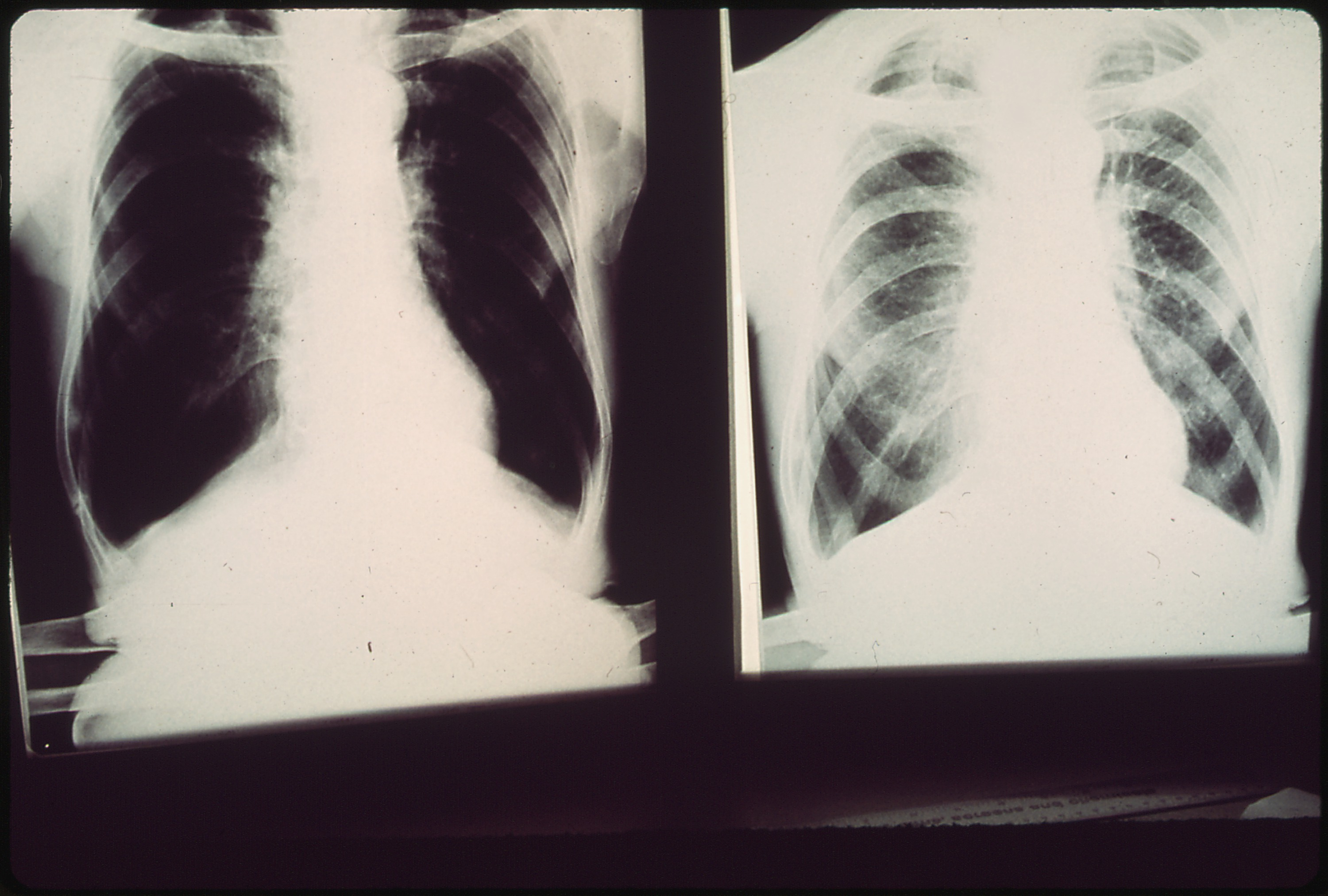what is black lung disease The number of cases of progressive massive fibrosis, the most severe form of black lung disease, has been increasing dramatically among coal workers and especially.