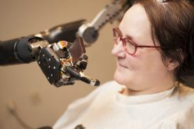 Jan Scheuermann, who has quadriplegia, brings a chocolate bar to her mouth using a robot arm she is guiding with her thoughts.