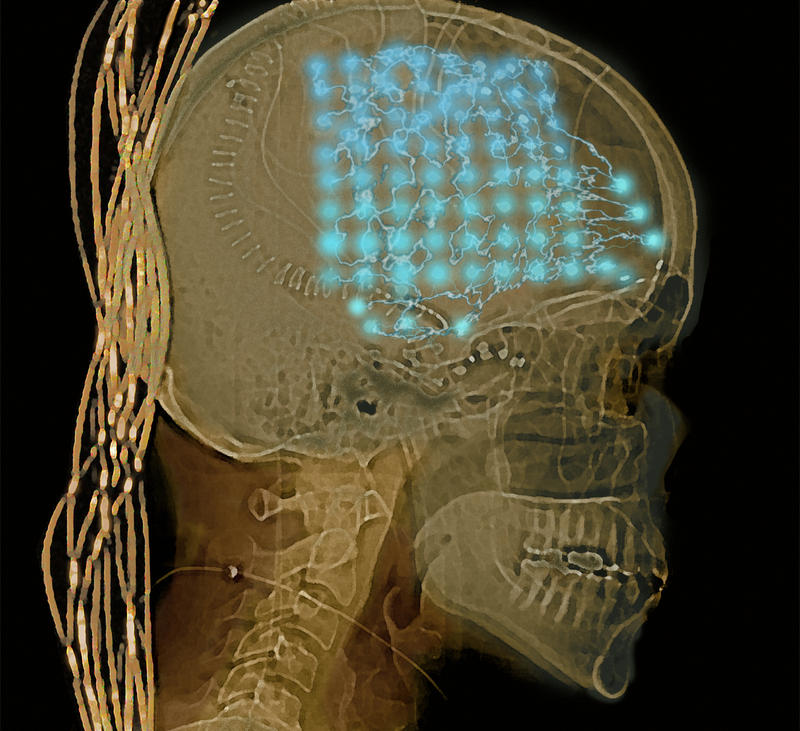 University of Pittsburgh researchers use electrodes implanted into the brains of people with epilepsy to study seizures and understand how our brains read.